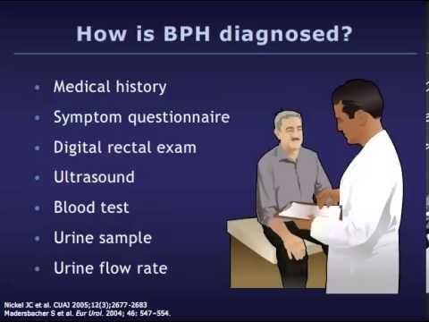 Understanding Benign Prostatic Hyperplasia (BPH) - YouTube