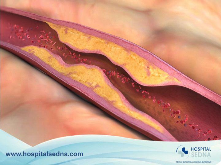 Un Aneurisma se refiere al ensanchamiento de una parte de la arteria debido a la debilidad en la pared de los vasos sanguíneos. Los lugares más frecuentes en los que se presentan, son la arteria aorta, el cerebro, el intestino, una arteria en el bazo o detrás de la rodilla. En Hospital Sedna, contamos con Médicos Especialistas Angiólogos para prevenir, diagnosticar y atender enfermedades relacionadas con el aparato circulatorio.  www.hospitalsedna.com