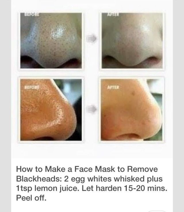 10 best images about home remedies on pinterest too late uses for baking soda and bee sting - What to do with citrus peels seven practical tips ...