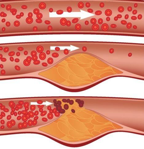 L'aterosclerosi è un processopatologico a carico delle pareti delle arterie, caratterizzato dalla deposizione di sostanze di natura lipidica, come ad esempio trigliceridi e colesterolo. Questa condizione può portare alla formazione di placche, in aree più o meno estese, che generano una riduzione del flusso ematico. La parete arteriosa colpita viene gravemente alterata da fenomeni difibrosi, …