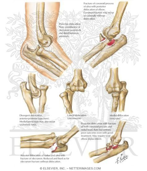 elbow exercises after fracture pdf