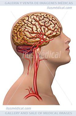 Ilustración La arteria carótida interna. La Carótida interna Irriga el interior del ...