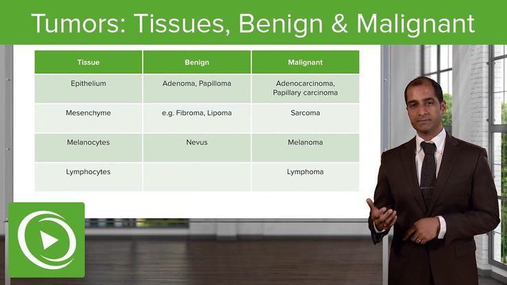 """Types of Tumors: Tissues, Benign & Malignant – Pathology 