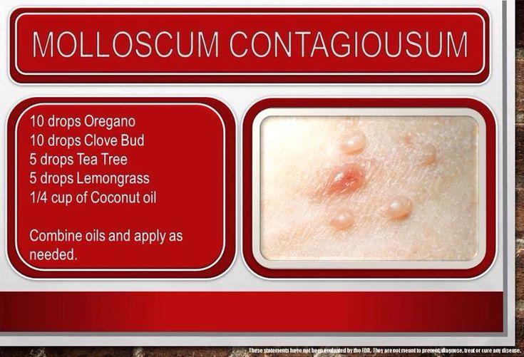 Natural Treatment option for molluscum contagiosum