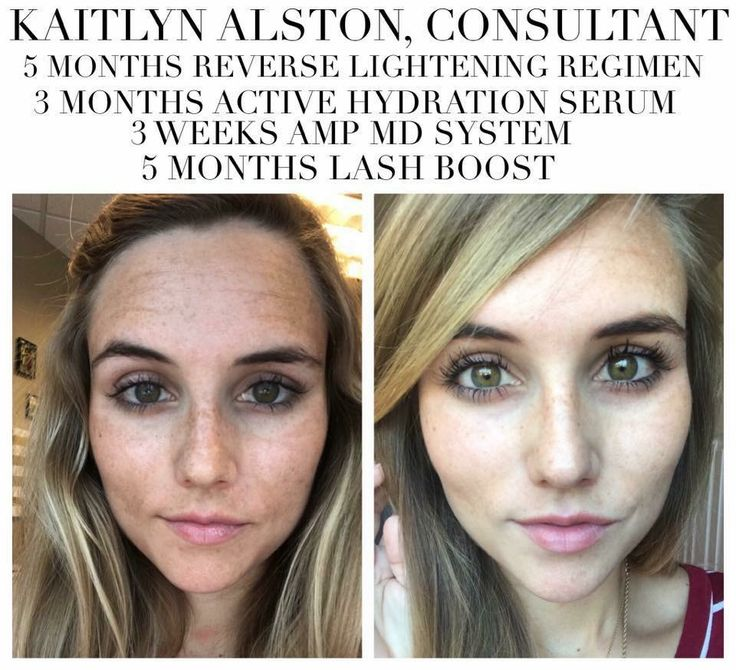 Rodan and fields Regimens // Rodan and fields // Rodan and fields redifine Regimen // Rodan and fields products // Rodan and fields before and after a // beauty // Skincare // Skin Care // Skin Care products // redifine // eyecream // anti aging // Rodan and fields reverse // Rodan and fields active Hydration Serum //