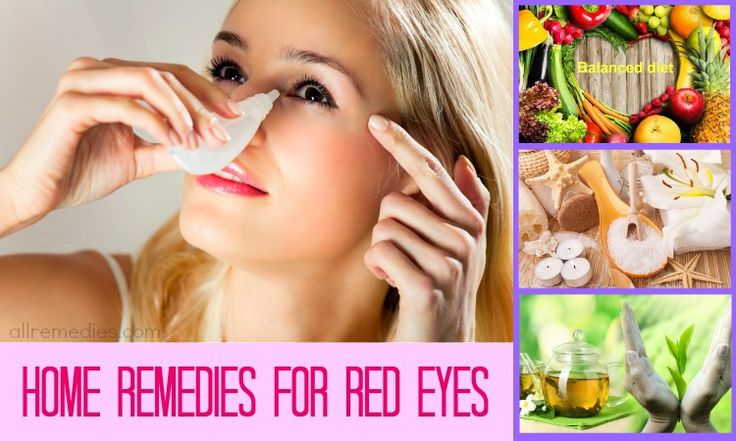 26 natural home remedies for red eyes relief