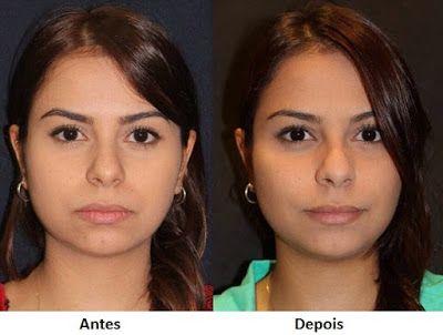 Bichectomia: saiba tudo sobre a cirurgia de redução das bochechas para afinar o rosto   Entre Coisas