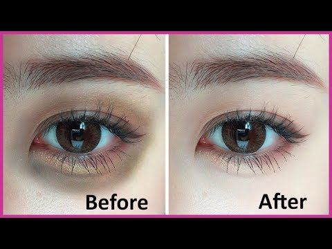 Get Rid of Dark Circles Fast !! | Home Remedies for removing under-eye dark circles - YouTube