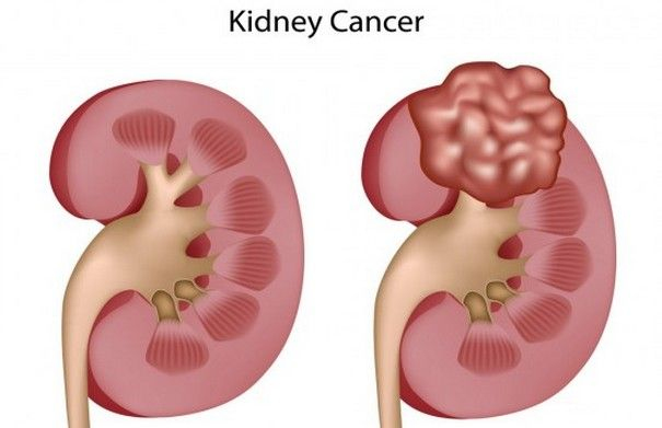 5 most influential Signs and Symptoms of Kidney Cancer