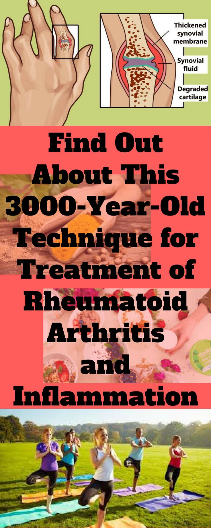 Find Out About This 3000-Year-Old Technique for Treatment of Rheumatoid Arthritis and Inflammation