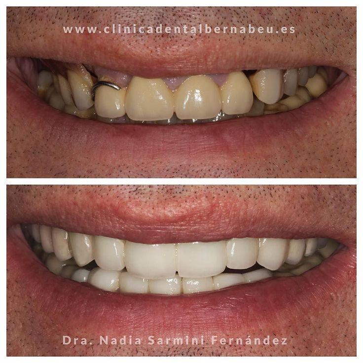 Implantes dentales y coronas de porcelana. #estheticdentistry #madrid #esteticadental #coronasdentales #sonrisa #clinicadental #dientes #antesydespues #cirugiaestetica #dentistry by clinicadentalbernabeu Our General Dentistry Page: http://www.myimagedental.com/services/general-dentistry/ Google My Business: https://plus.google.com/ImageDentalStockton/about Our Yelp Page: http://www.yelp.com/biz/image-dental-stockton-3 Our Facebook Page: https://www.facebook.com/MyImageDental Image Dental…