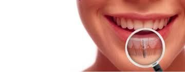 Dental Implants,Tooth Implant | Wasserman Family Dentistry