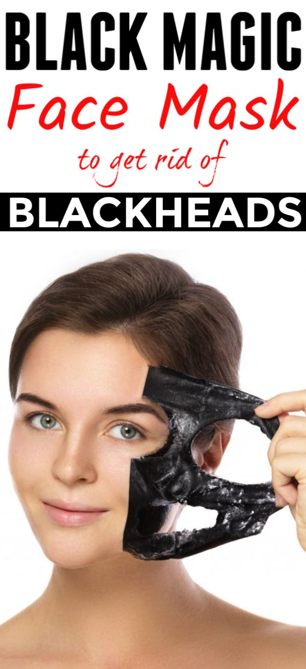 """Use """"Black Magic"""" mask only once and get Blackheads free skin in just 10 minutes"""