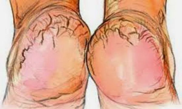 If You Have Heel Fissures Cracked Heels This Is 100% Efficient And Cheap Solution (Recipe)