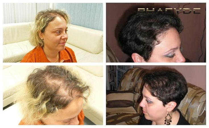 Trasplante de pelo para las mujeres - PHAEYDE Clínica Christina tuvo una pérdida de cabello difusa por todas partes en la parte superior de su cabeza. Después de un trasplante de cabello 5000+ ella también decidió cambiar su estilo de pelo también. Ahora ella ve años más joven, y por supuesto no tiene que llevar bufanda de nuevo. Ella se ve simplemente impresionante después del tratamiento. Hecho por la Clínica PHAEYDE. http://es.phaeyde.com/trasplante-de-cabello