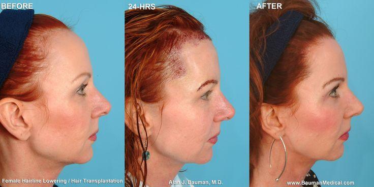 Female Hairline Lowering