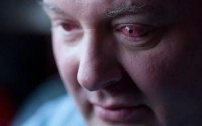Britânico tem cegueira revertida graças a implante de dente no olho ~ Portal PcD On-Line