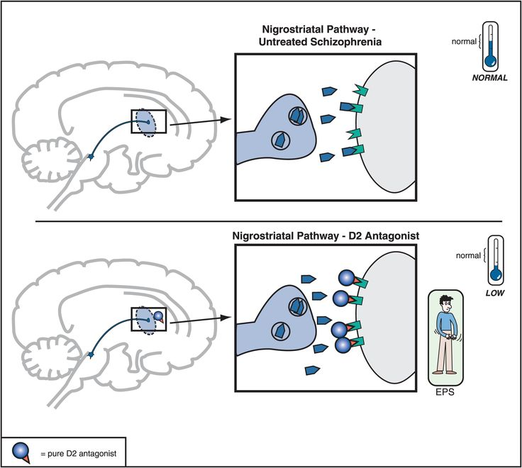 Figure 5-6. Nigrostriatal dopamine pathway and D2 antagonists. The nigrostriatal dopamine pathway is theoretically unaffected in untreated schizophrenia. However, blockade of D2 receptors, as with a conventional antipsychotic, prevents dopamine from binding there and can cause motor side effects that are often collectively termed extrapyramidal symptoms (EPS).
