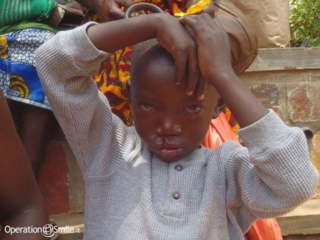 Prima dell'intervento Clementine veniva derisa dagli altri #bambini ed #emarginata dall'intera #comunità. Sua #madre Immaculate voleva aiutarla ad ogni costo, così lei e la sua bambina hanno affrontato un viaggio di 5 ore per raggiungere la nostra #missione a Kigali, Ruanda. Leggi la loro #storia, fai click sulla #foto