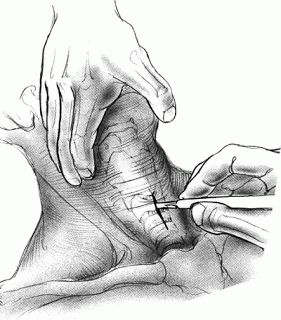 SHTF Medical Skill of the Day: How to Perform an Emergency Tracheotomy