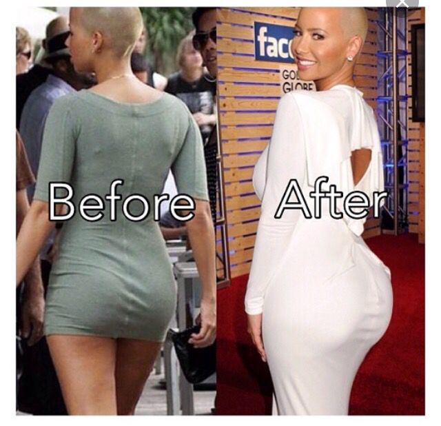 And Amber Rose After Surgery