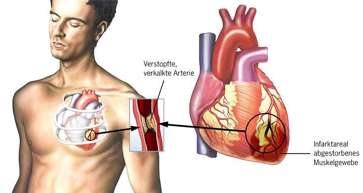 Was haben Herzinsuffizienz und Herzinfarkt miteinander zu tun? Hauptursache für beide Erkrankungen ist eine Verengung oder ein Verschluss der Herzkranzgefä