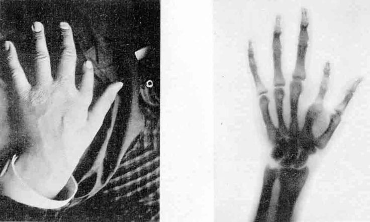 January 05, 1896 – An Austrian newspaper reports that Wilhelm Röntgen has discovered a type of radiation later known as X-rays.