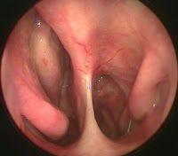 Cara Cepat Atasi Polip Hidung >> Polip hidung merupakan daging tumbuh seperti tumor yang timbul di dalam salah satu rongga hidung ataupun keduanya yang terjadinya karena munculnya masa lunak yang mengandung banyak cairan di dalam rongga hidung yang apabila baru terbentuk polip akan tampak seperti air mata dan apabila telah matang di dalam rongga hidung.Karena itulah, tak jarang penyakit polip hidung ini disebut tumor hidung.Namun, pada dasarnya daging yang tumbuh merupakan pertumbuhan…