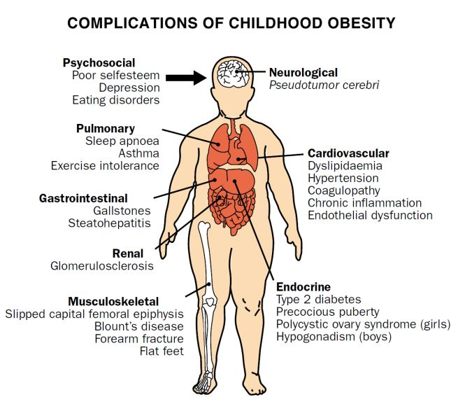 Term papers on obesity