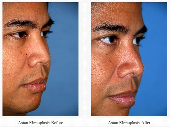 25 Best Images About Rhinoplasty Seattle
