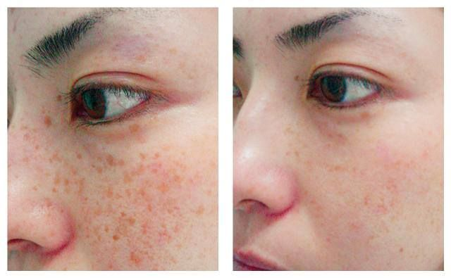 How to remove freckles naturally.  Make a mixture of the juices of parsley, lemon and orange. Add the mixture to your face cream. Make sure that your cream contains Vitamin E. Apply a little amount of cream on your face at least twice a day. This will help you get rid of the freckles easily.