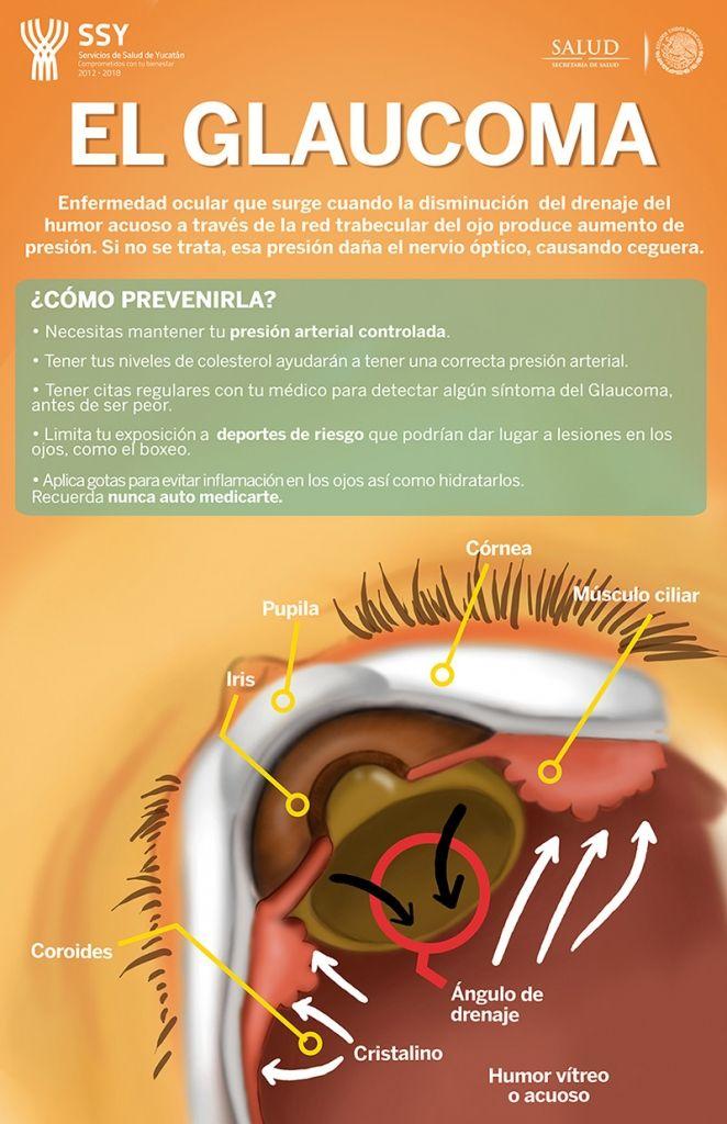 #Glaucoma qué es y cómo prevenirlo
