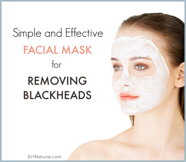 I've had problems with blackheads and oily skin all my life. Luckily, this simple homemade blackhead mask can help clear them and leave your skin soft and smooth.