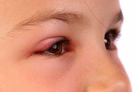 Swollen Eyelids Cure thumbnail