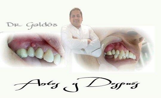 Rehabilitación Dental,  Coronas de Porcelana