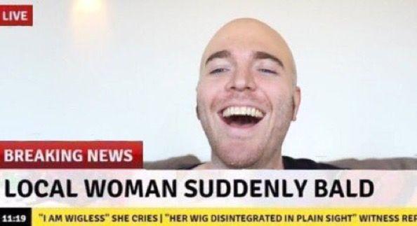 Pin By Grandesreputation On Meme Live Breaking News Balding