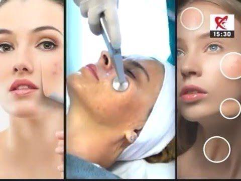 Spot Diferente si Esente - Despre acnee