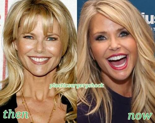 Christie Brinkley Plastic Surgery Botox