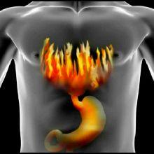 Лечение хронического панкреатита