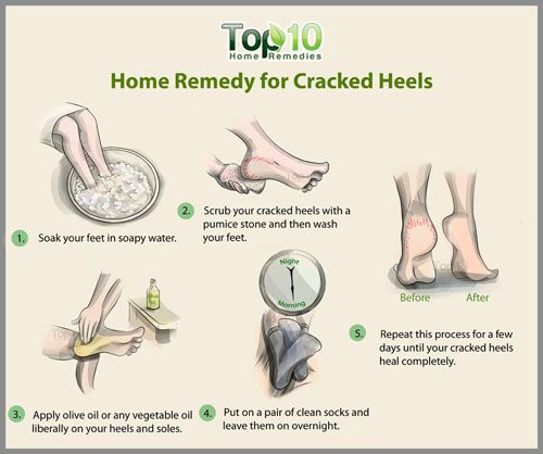 how to heal cracked feet with listerine