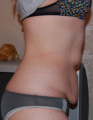 Weight Loss   Loose Skin     how to keep mommy belly from looking like a pouch