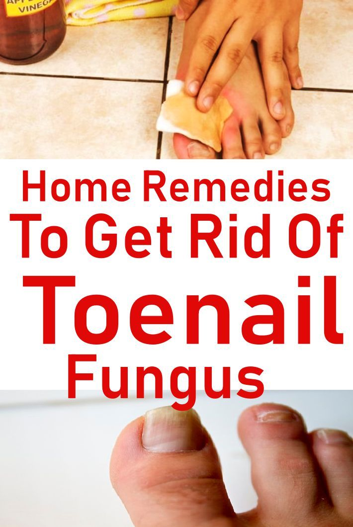 Cracked, yellowing or discolored toenails do more than just affect ...