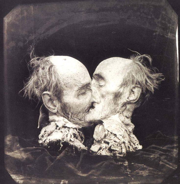 The Kiss - Joel Peter Witkin.