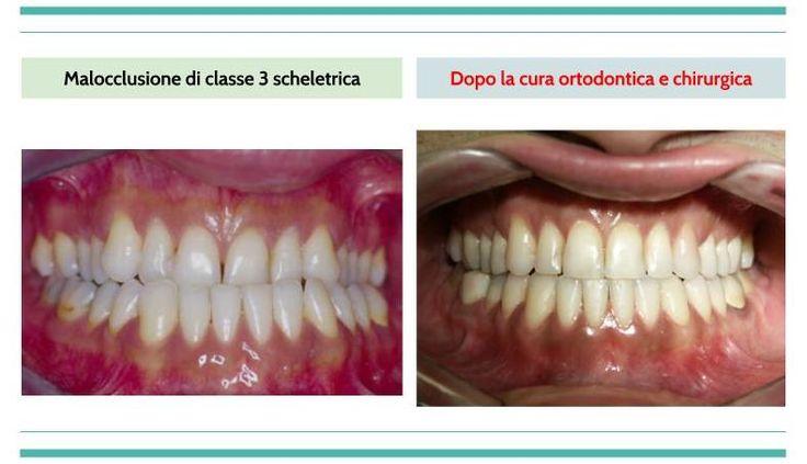 Casi clinici ortodontici Chirurgia Ortognatica/Classe 3 scheletrica http://www.studiodentisticobalestro.com/2016/06/chirurgia-ortognatica-classe-3_6.html