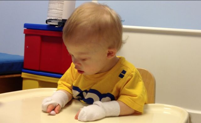 to work on developing a pincer grasp, place socks on your child's hands and cut a hole so only the thumb and index finger stick out  Repinned by  SOS Inc. Resources  http://pinterest.com/sostherapy.