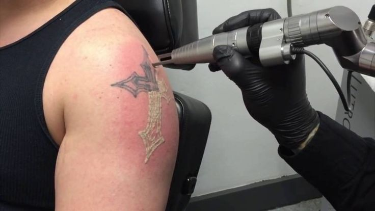 Tattoo Removal - Dial 9999909292 to know about Tattoo Removal Cost, Cosmotree is a well known name for Skin and Hair Treatment and #TattooRemovalinDelhi.