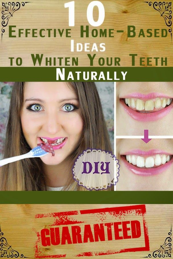 Natural Tooth Whitening Ideas: 10 Effective Home-Based Ideas to Whiten Your Teeth Naturally