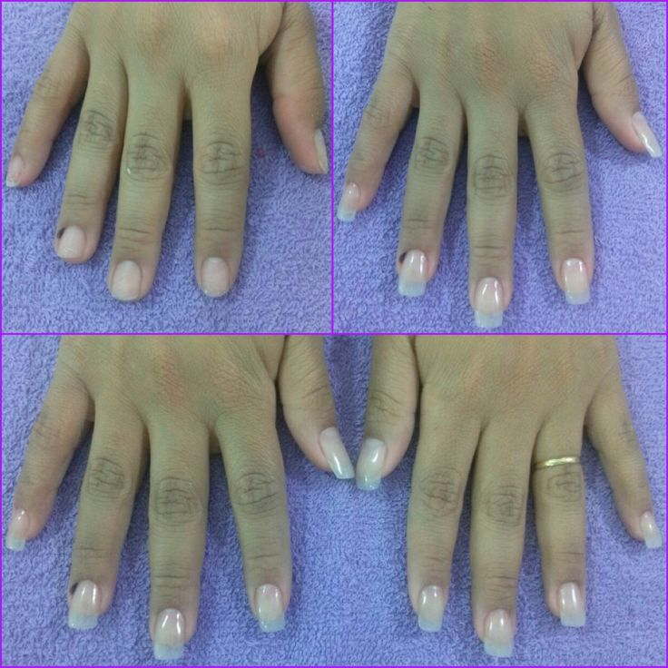 Solução para unhas roídas  ou quebradiças. Aparência natural e resistência sem agredir as unhas, com aplicação de fibra de vidro!