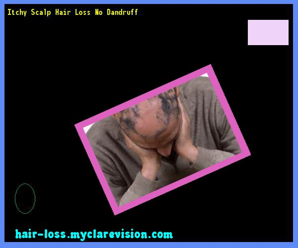 Itchy Scalp Hair Loss No Dandruff 232713 - Hair Loss Cure!
