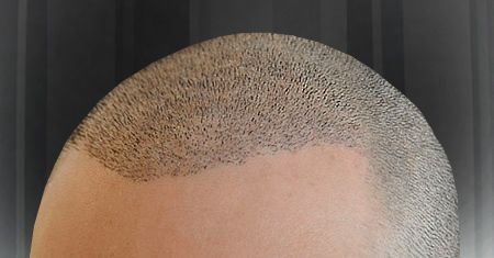 Get the information about two most poupular hair transplant techniques FUT and FUE Hair transplant procedure.